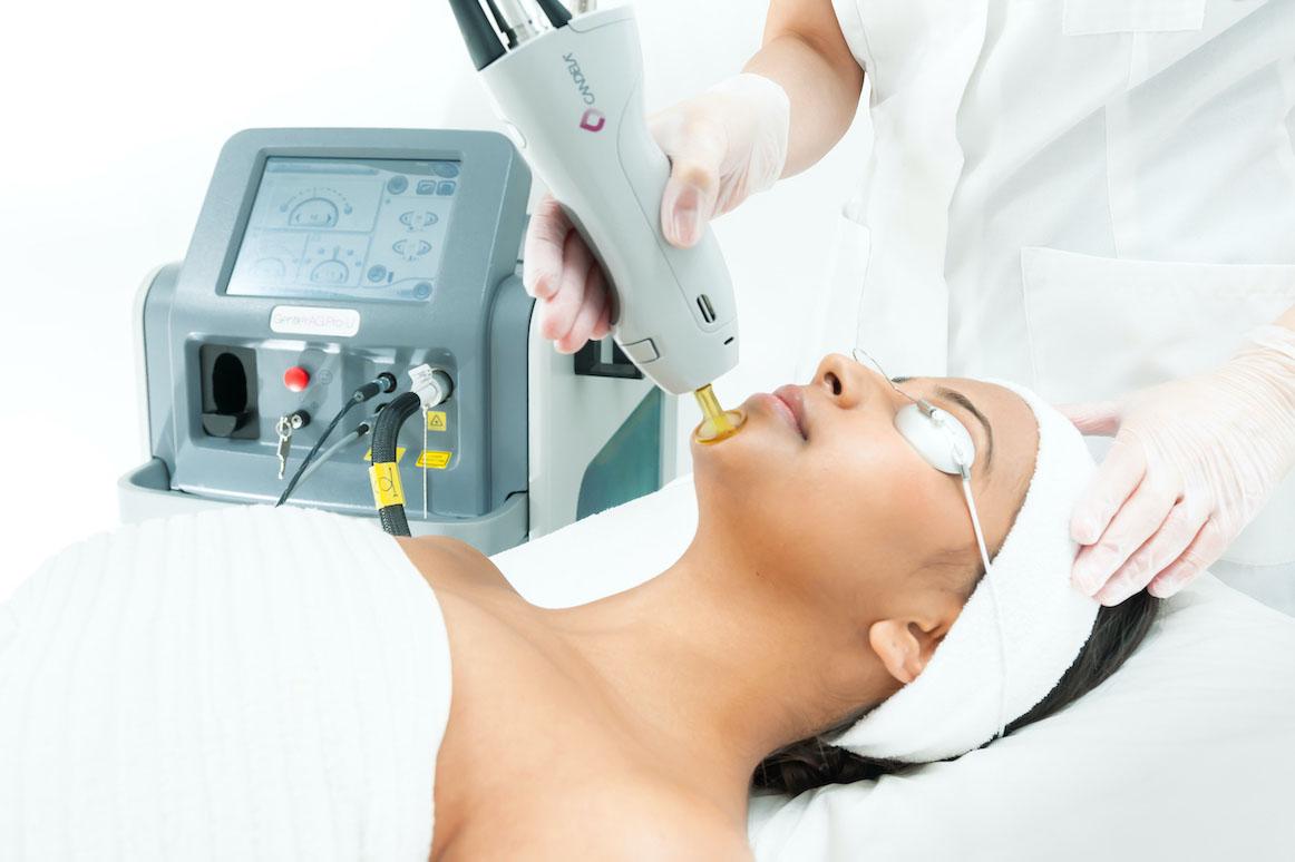 Laser Ontharen Gentlemax pro - Dark skin