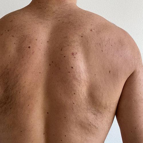 Laser ontharen - Back man