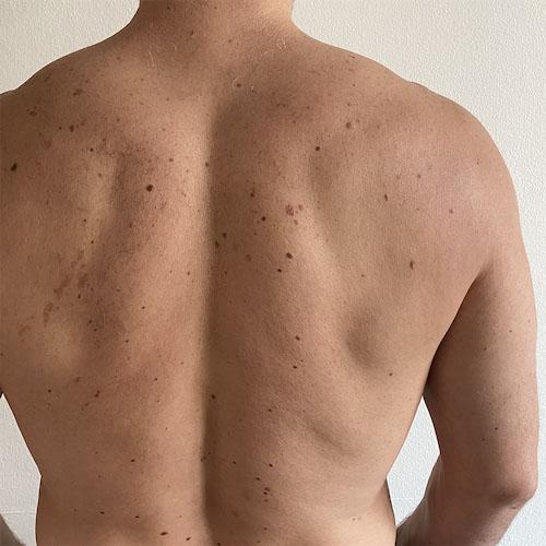 Laser hair removal - Back man